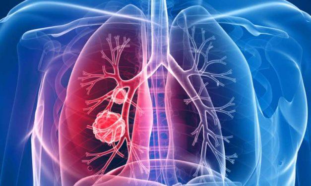 Evaluación y manejo de adultos con asma durante la pandemia del Covid 19