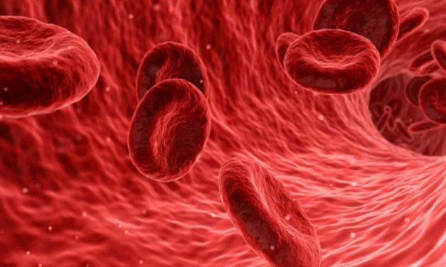 Diagnóstico, manejo y fisiopatología de la trombosis arterial y venosa en Covid-19